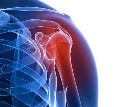 Артрит плечевого сустава симптомы и лечение